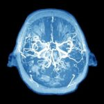 A New Theory Of Alzheimer's Shifts Focus Away From Familiar Plaques