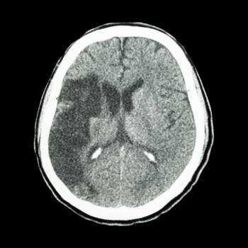 Epilepsy drug for stroke