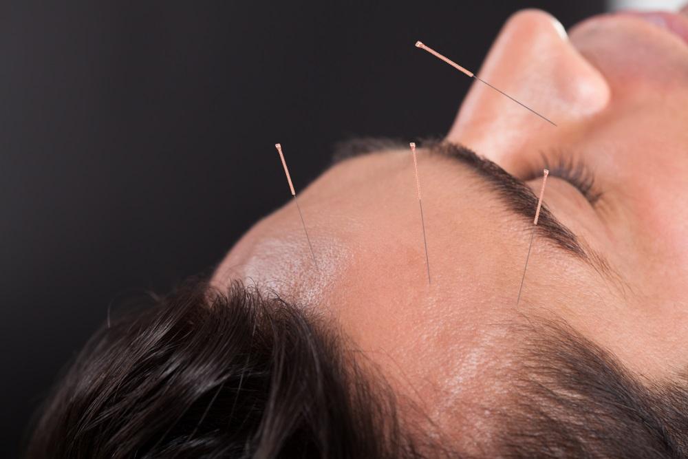 West Palm Beach Acupuncture