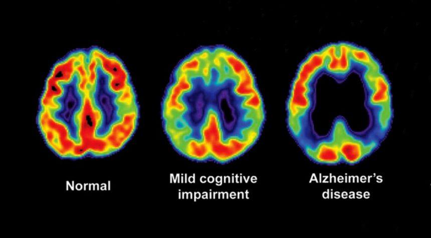 alzheimer's progression PET