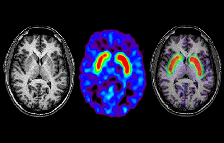 axial section normal brain scan
