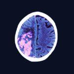 Brain stroke MRI