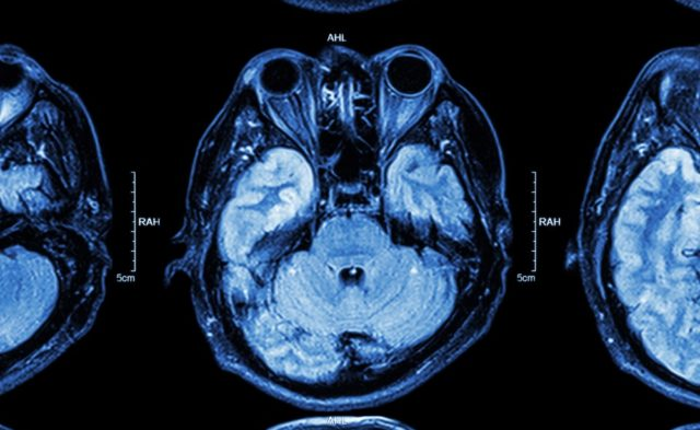 brain temporal lobe MRI