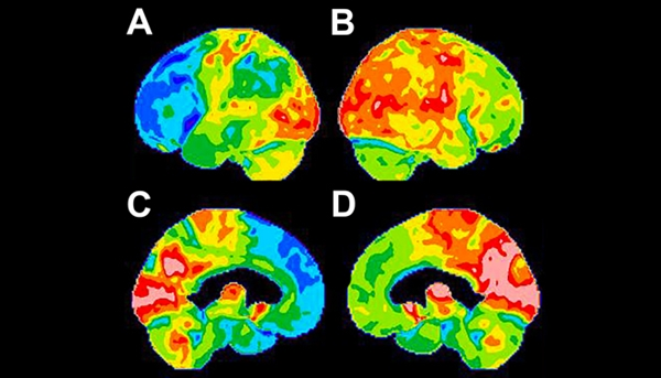 FDG-PET scan features of bvFTD. FDG surface reconstructions of the right and left lateral cerebral hemispheres (A and B, respectively) and the left and right mesial cerebral hemispheres (C and D, respectively) demonstrate severe disproportionate FDG hypometabolism in the left frontal lobe and medial left temporal pole.