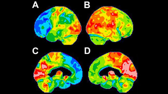 PET scan features of behavioral-variant frontotemporal dementia