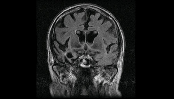 A patient with right temporal variant FTLD.