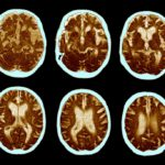CAT scan of alzheimer's disease in brain
