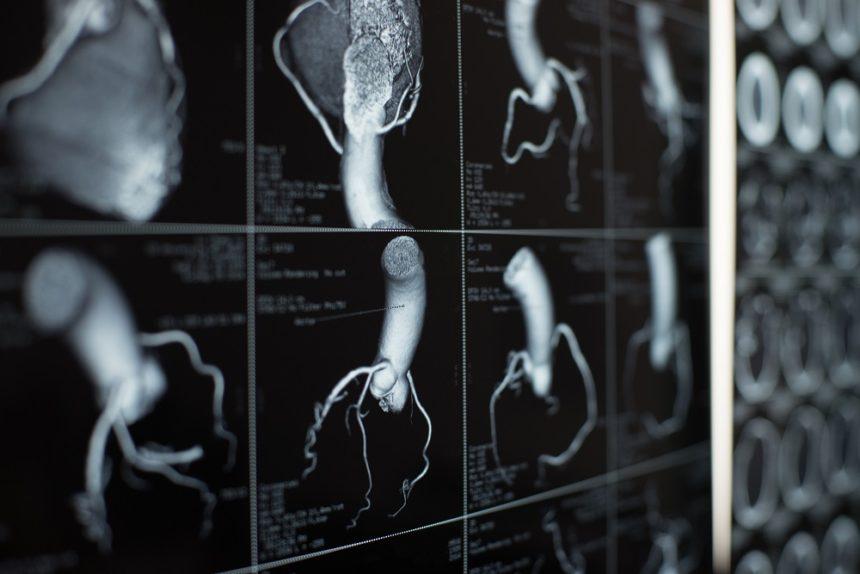 Coronary artery and heart scan