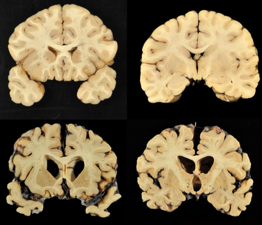 chronic traumatic encephalopathy CTE brain