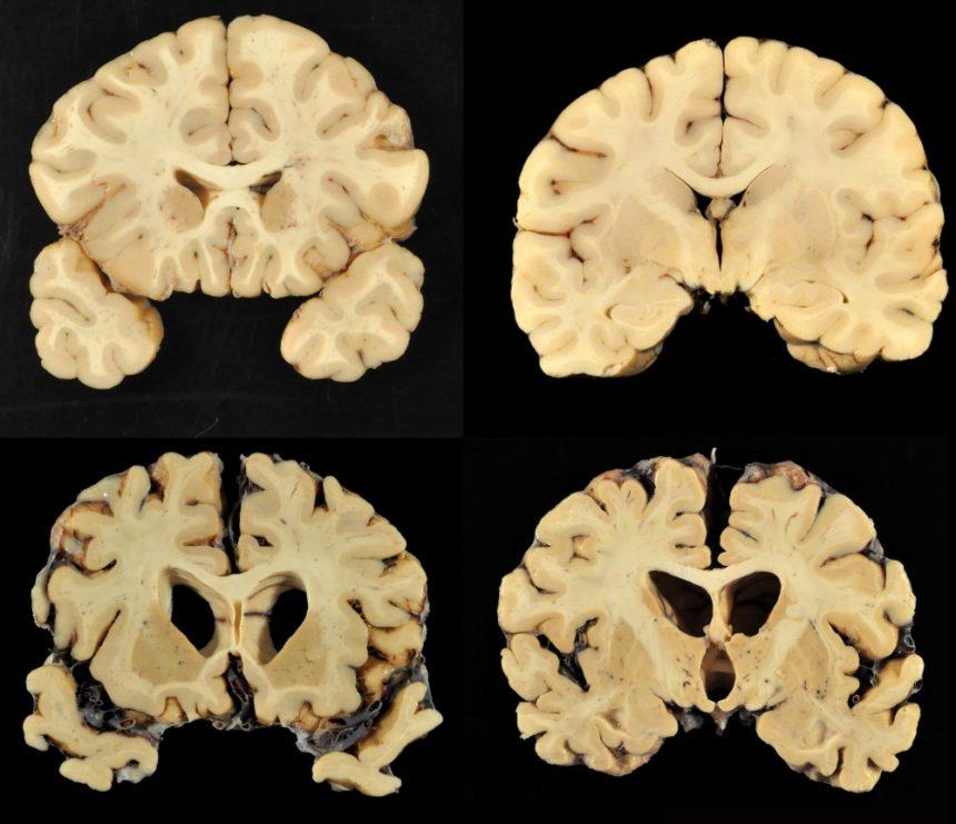 chronic traumatic encephalopathy CTE brain