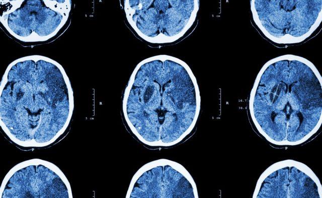 CT of brain, ischemic stroke