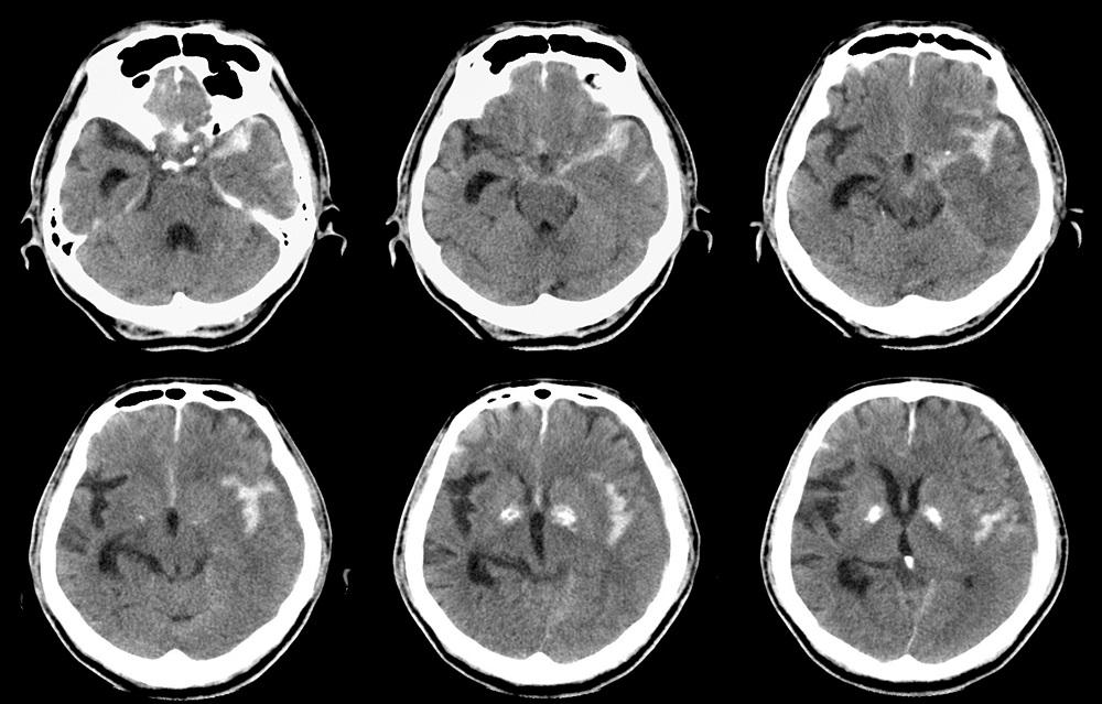Deep Learning Algorithms Identify CT Scan Abnormalities in