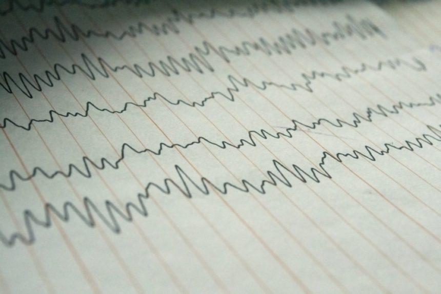 EEG brain waves