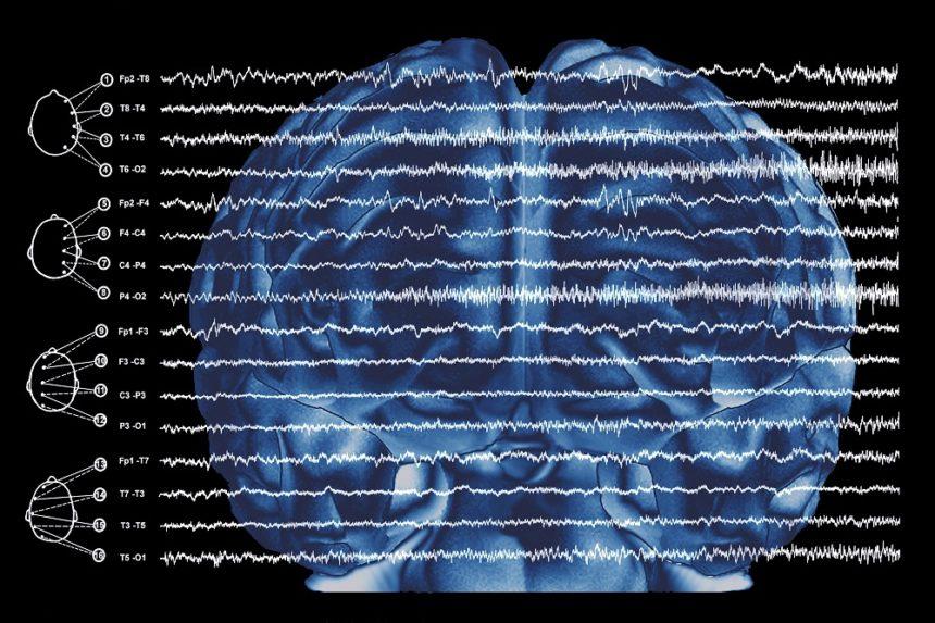 EEG focal epilepsy
