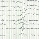 EEG epilepsy