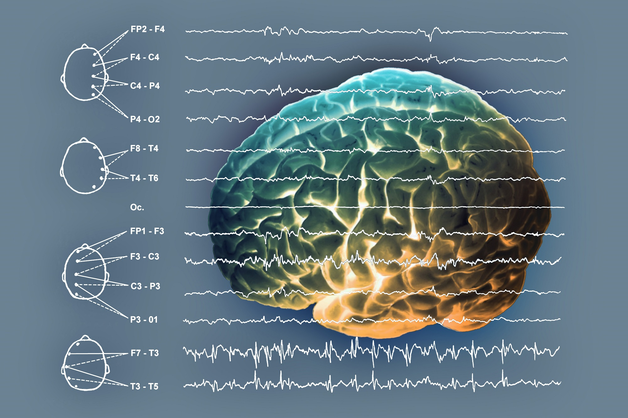 Myoclonic-Atonic Seizures and Lennox-Gastaut Syndrome Present With