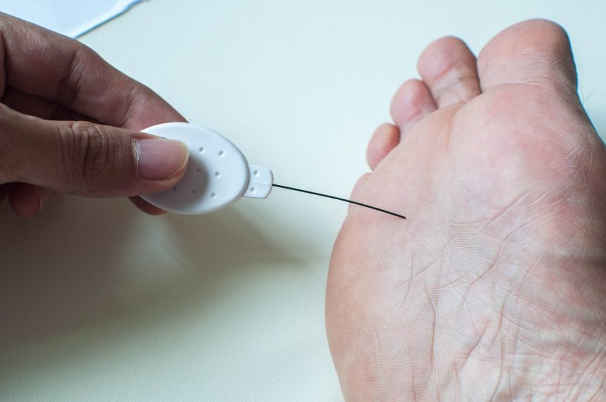 foot neuropathy test
