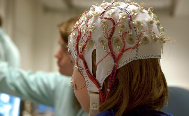 girl with EEG cables for test