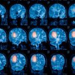 glioma brain tumor