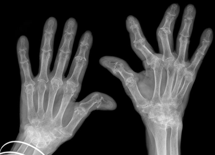 Autoimmune Disease Hospitalization Linked to Future Dementia Risk