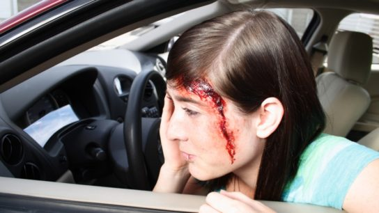 car accident head injury