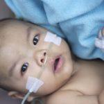 sick infant baby boy