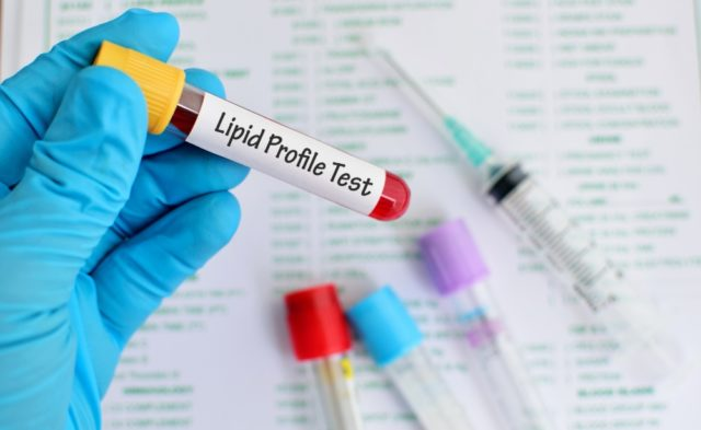 lipid blood test