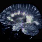 MRI of MS