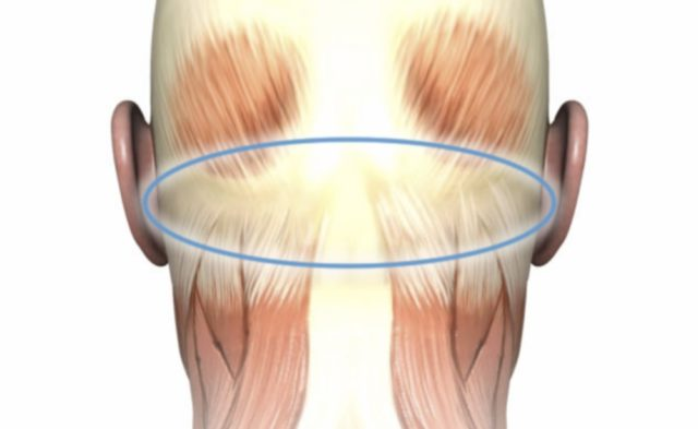 occipital trigger site