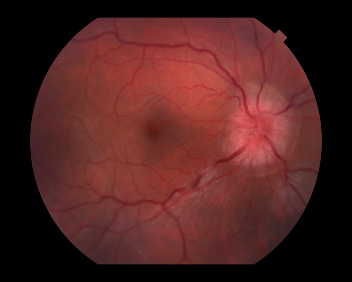Optic Neuritis