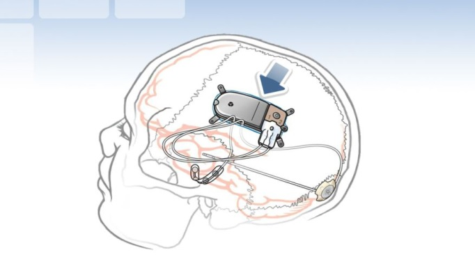Direct Neurostimulation Reduces Focal Seizure Frequency Over