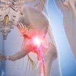 sciatica sciatic nerve