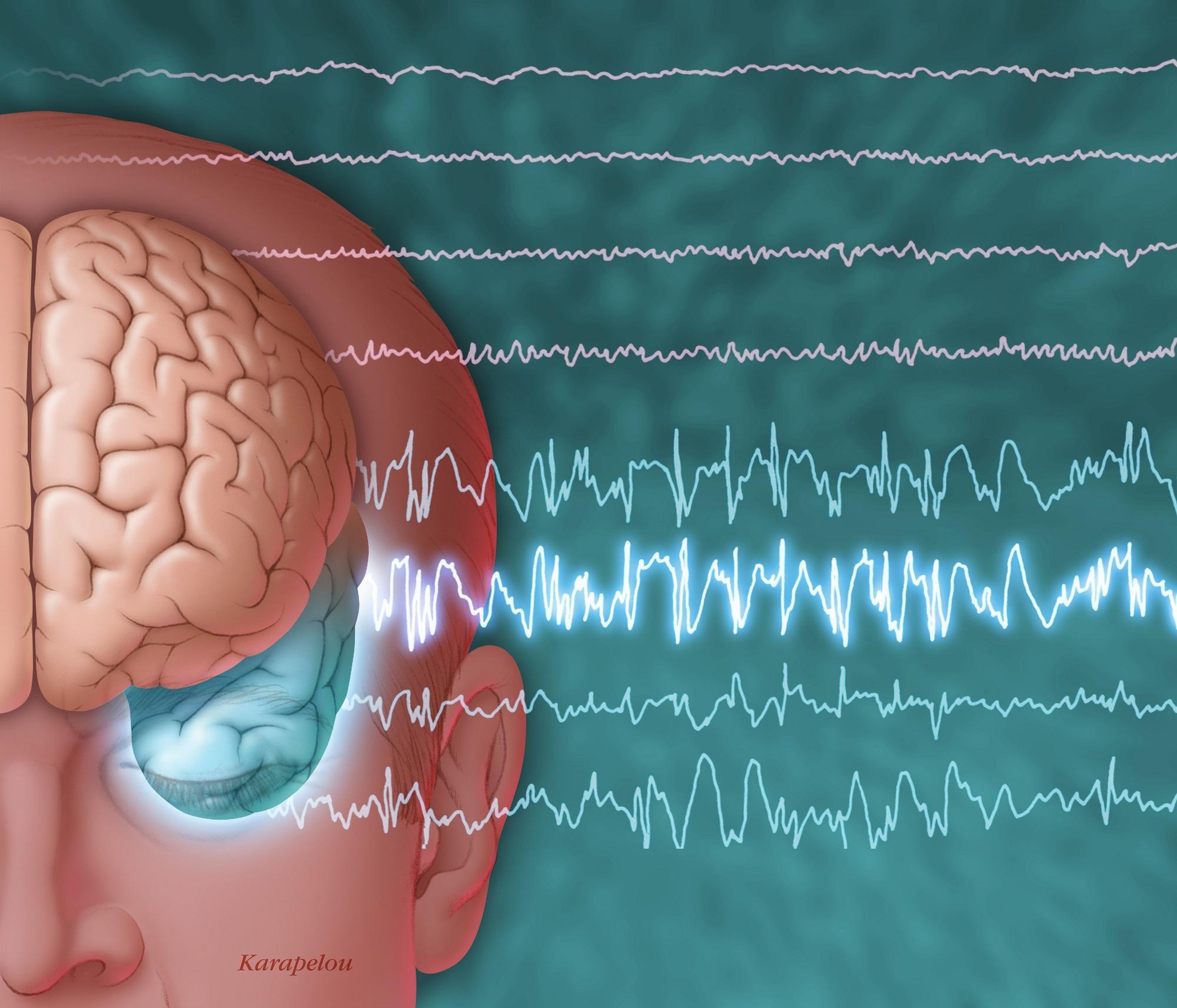 Eslicarbazepine Reduces Seizures Improves Hrqol In