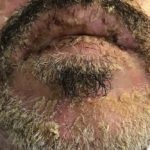 Man with a skin disease around their beard