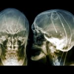 Parkinson's brain pacemaker