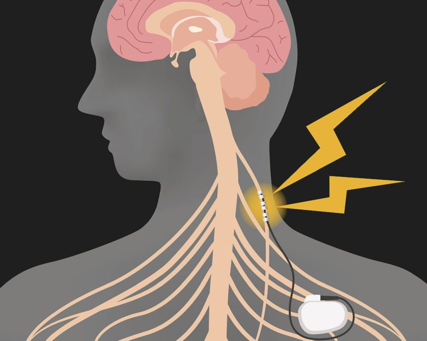Vagus Nerve Stimulation in Pediatric Epilepsy: Weighing the Risks
