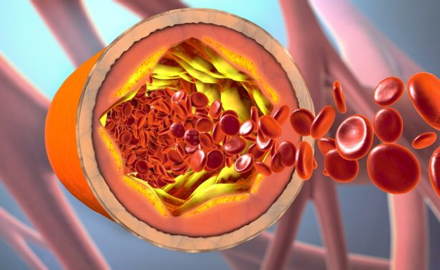 arteriosclerosis, narrowing blood vessels
