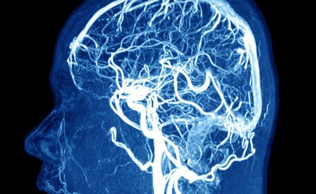 brain imaging MRI