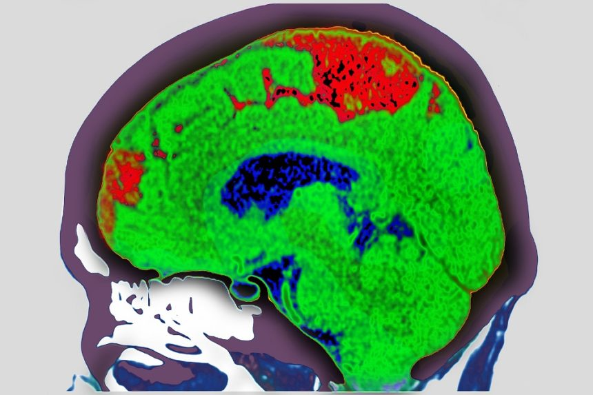 brain scan of a cerebrovascular accident