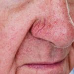 Close up of nose with spider veins