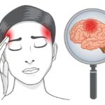 woman with headache symptoms