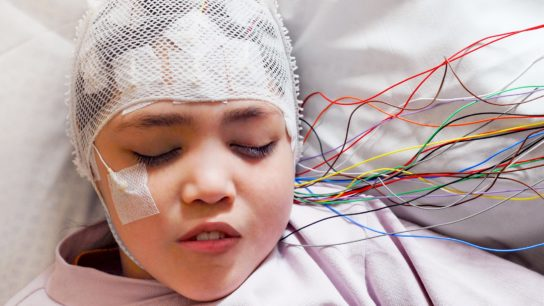 Girl hooked up to EEG machine