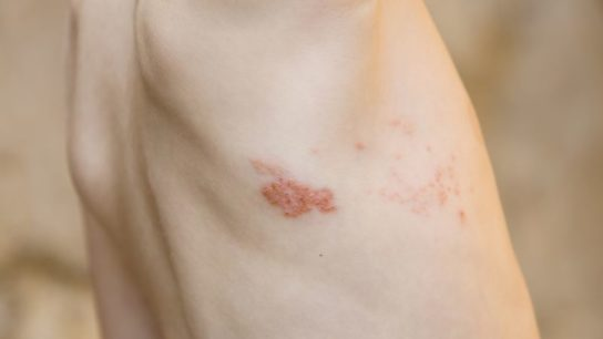 Herpes zoster symptoms on a man's torso