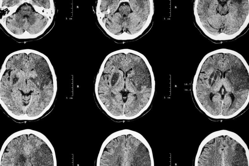Stroke, CT scan