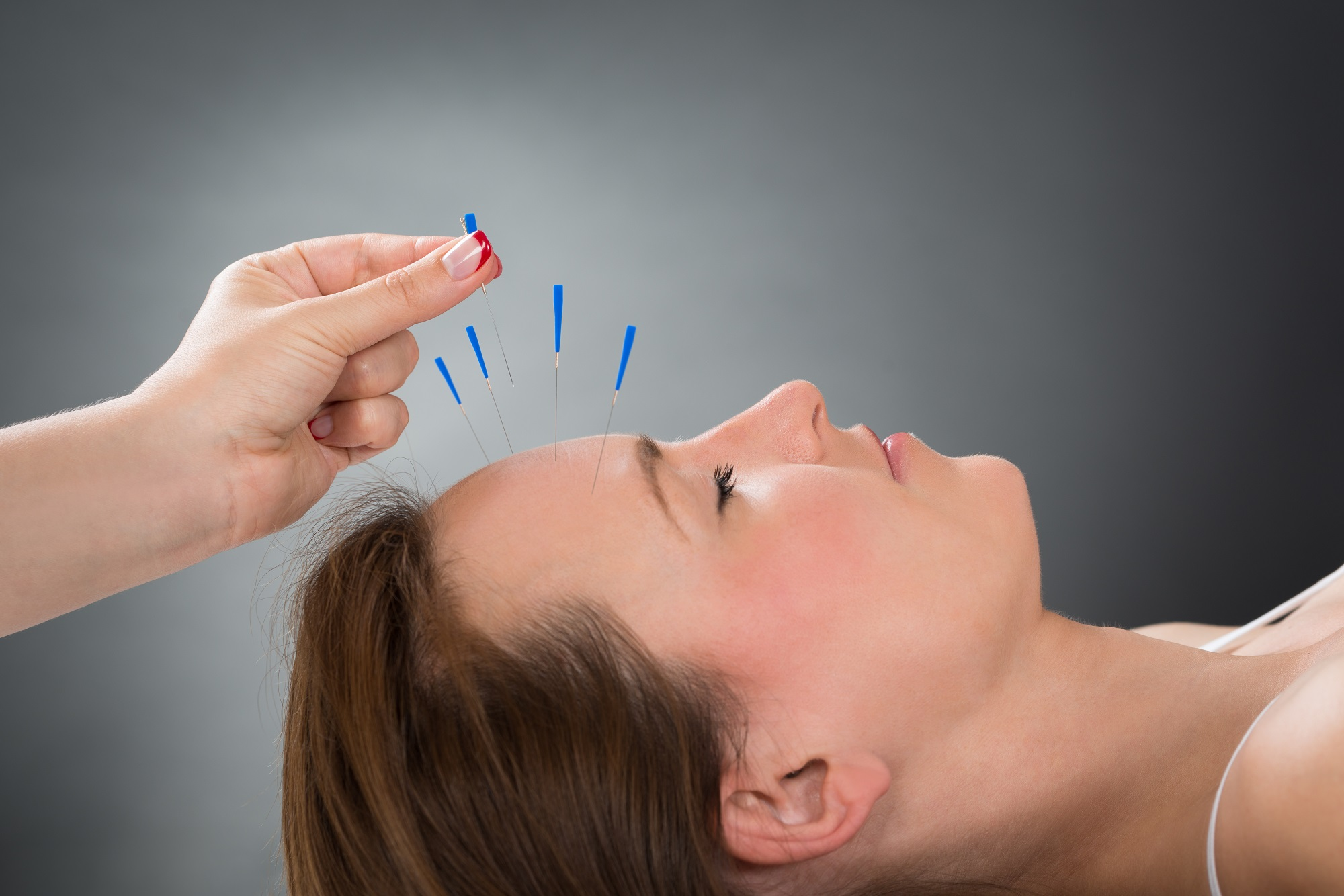 Complementary and Integrative Treatments for Migraine: An Expert ...