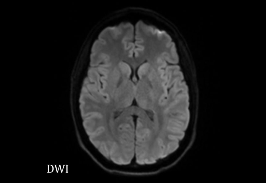 Diffusion-Weighted Imaging: Recurrent Ischemic Stroke Risk