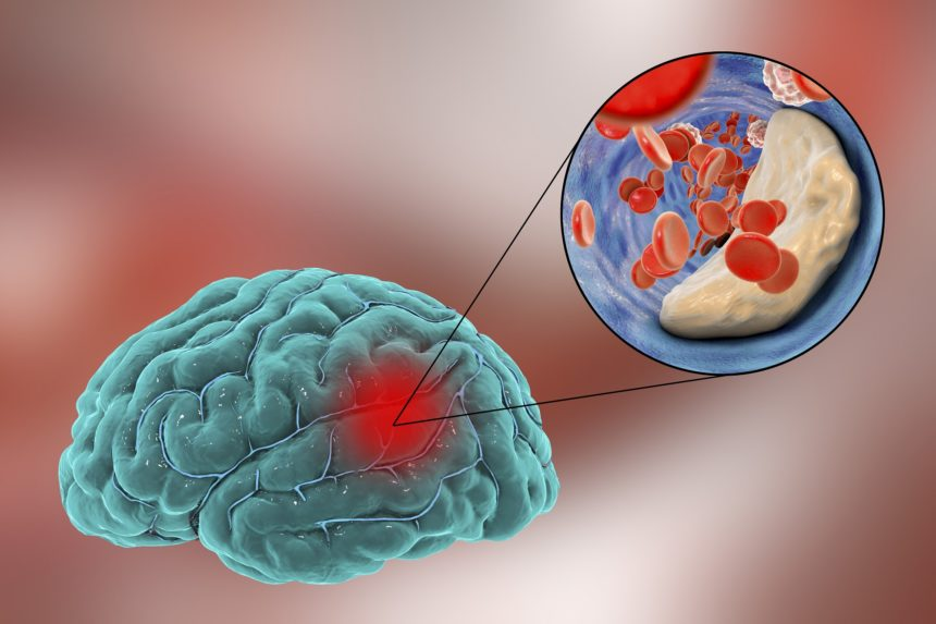 stroke caused by atherosclerosis