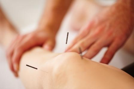 knee, acupuncture, TKR