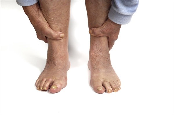 There are 4 main types of diabetic neuropathy: peripheral, autonomic, radiculoplexus, and mononeuropathy. Diabetic peripheral neuropathy is the most common, and is associated with tingling and burning sensations in the extremities. Autonomic neuropathy can disrupt the function of other organs, leading to bladder problems, constipation, sexual dysfunction, and the loss of the ability to regulate body temperature, blood pressure, and heart rate. Mononeuropathy is often the cause behind facial paralysis and problems with eyesight, though these symptoms tend to not be long-term.