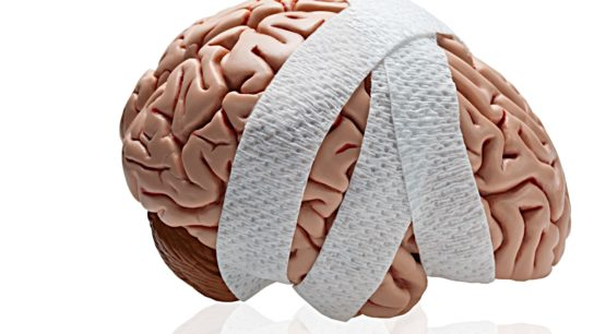 A render of a brain wrapped in tape.